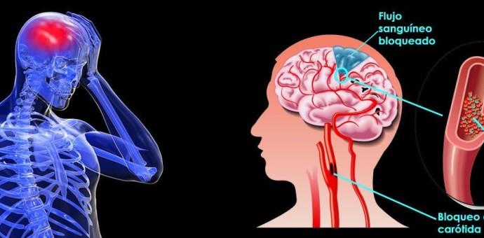 Los ataques cerebrales son la tercera causa de muerte en el mundo