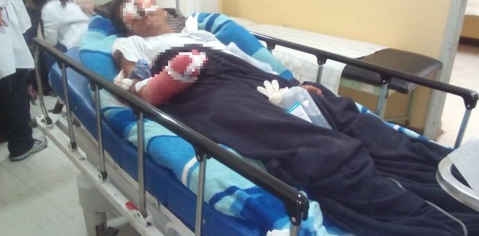 Poblador de Paucartambo pierde la mano derecha por pescar con dinamita
