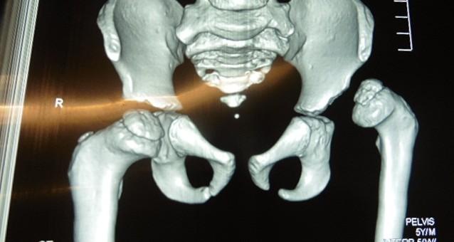 Médicos del Lorena realizaron alta cirugía de luxación congénita de cadera de niño de 5 años