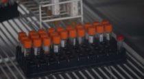 Cusco registra 28 casos confirmados de coronavirus